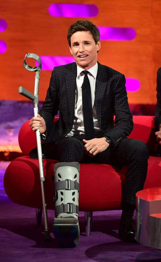 "Eddie Redmayne sported a boot from an on-set injury during his interview on ""The Graham Norton Show""."