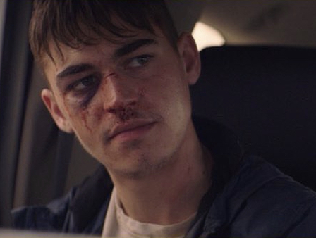 "Hero Fiennes-Tiffin could use a raw steak for that eye in this film still from ""The Silencing""."